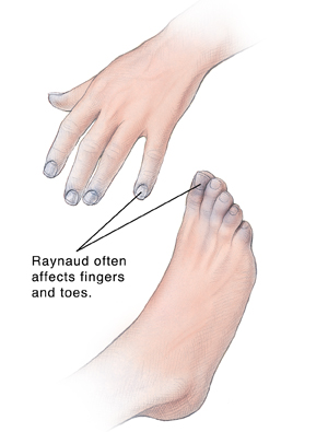 Hand and foot showing discolored tips of fingers and toes.