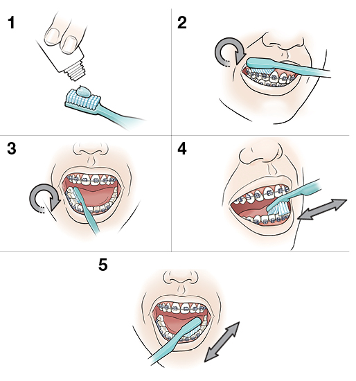 5 steps in brushing teeth and braces
