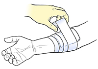 Gloved hand securing bandage on forearm with tape.
