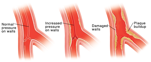 Cross section of artery with arrows showing normal blood pressure on inside walls. Cross section of artery with arrows showing high blood pressure on inside walls. Cross section of artery showing damaged lining and plaque buildup.