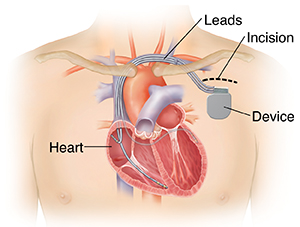 Outline of man's chest showing biventricular implantable cardioverter defibrillator in chest with 3 leads going into heart chambers.
