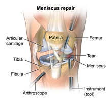 Arthroscopic meniscus repair