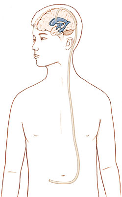 Outline of boy showing ventricles in brain with tube running from ventricle down back of head and neck, through chest, and into abdomen.